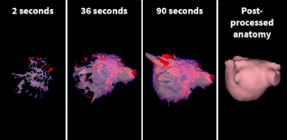 Ultrasound reconstruction of the left atrium using the AcQMap tool. Post-processing is performed to establish the final anatomy.