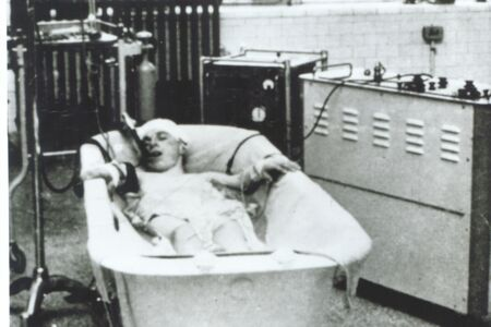 An early heart surgery patient in an ice bath (late 1950s).